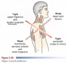 斜方肌_斜方肌损伤的相关症状及治疗-有来医生