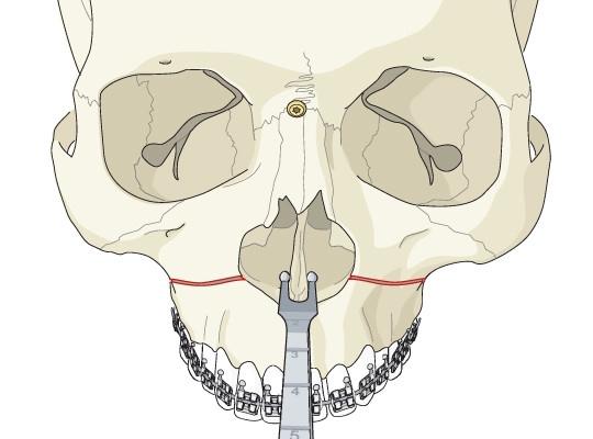 鼻中隔弯曲手术_鼻中隔弯曲手术图解 (7)_有来医生