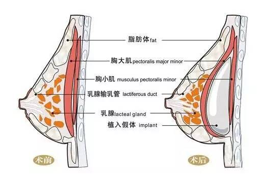 刘成胜告诉你乳腺增生可以做自体脂肪隆胸吗?